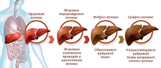 Разрушение печени при гепатите Б
